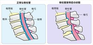 小林直己襲った発達性脊柱管狭窄症とは、今後ドラマでの可能性如何に
